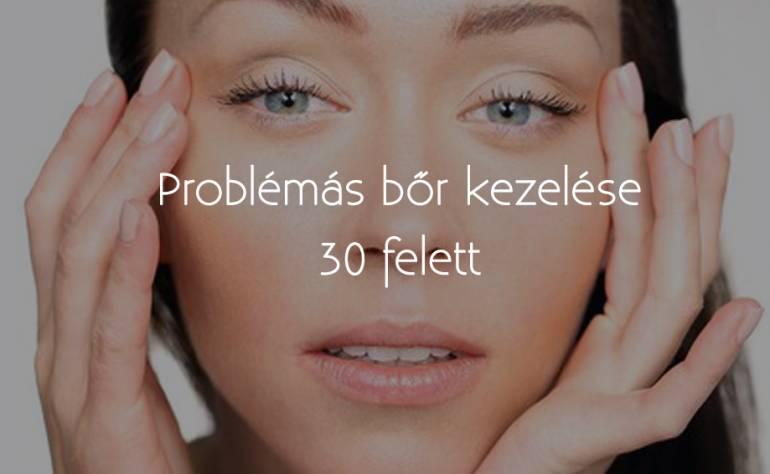 Problémás bőr kezelése 30 felett